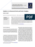 10 NS Brain Perfusion Imaging