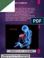 Caso Clinico Artritis