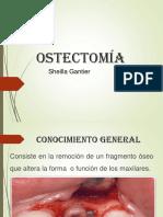 Ostectomía