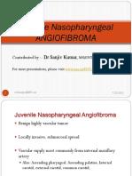 Angiofibroma by Sanjiv Kumar
