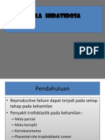 121631 Molahidatidosaperfect 130703072820 Phpapp01