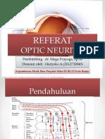REFERAT Optic Neuritis