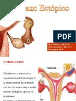 embarazoectopico-140328182210-phpapp02.pptx