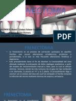 frenectomia