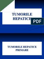 Tumori hepatice Romana 2017.pptx