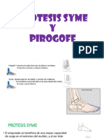 Protesis Syme y Pirogoff