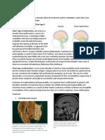 Brain Congenital Malformations