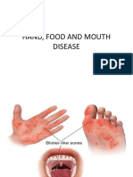 HAND, FOOD AND MOUTH DISEASE.pptx