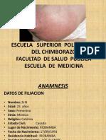 Caso Clinico Mastitis