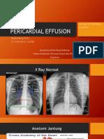 Pericardial Effusion Yosi