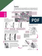 Angioplaty.pdf