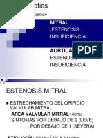 1.1valvulopatia Mitral