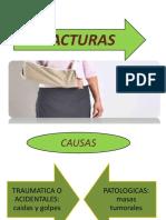 FRACTURAS DIAPOSITIVA