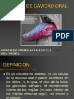 Cancer de Cavidad Oral