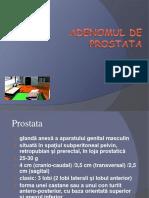 Adenomul de Prostata