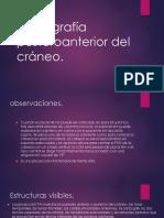 Radiografia Posteroanterior Del Cráneo