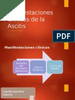 Manifestaciones Clinicas de La Ascitis