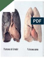 pulmones fumador.pptx