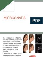 micrognatia