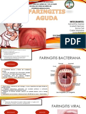 Fotos faringitis aguda