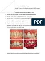 Klasifikasi Gingivitis