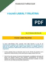 1.-Fisura Labial y Palatina