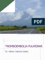 tromboembolia-pulmonar