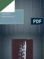 tumoresvertebralesymedulares-120306212142-phpapp01