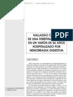 Hiperferritinemia relacionada con adenocarcinoma de pro¦üstata diseminado