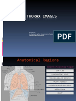 Chest & Thorax - Copy