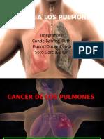 Cáncer Los Pulmones