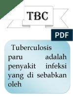 Flipchart Tbc