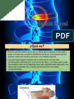Diapositivas de Hernia Discal