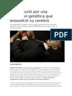 Lenin Murió Por Una Mutación Genética Que Endureció Su Cerebro