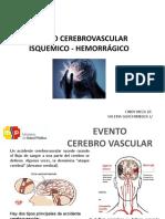 Accidente Cerebro Vascular Isquémico y Hemorrágico