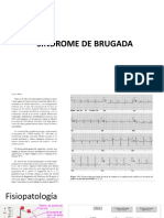 SINDROME DE BRUGADA.pptx