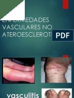 Vasculitismodifi Copia 130404003451 Phpapp01