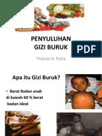 88408476-Lembar-Balik-Gizi-Buruk.pptx