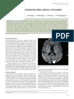 Cerebrovascular ischaemia after carbon monoxide intoxication.pdf