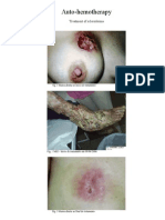 Autohemotherapy - Treatment of Scleroderma