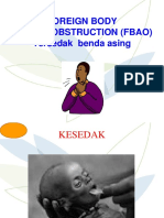 Bhd Chocking Bayi & Neonatus