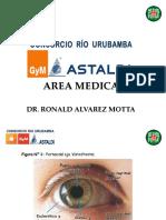 0. Tratamiento Ocular
