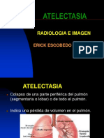 radiologia1atelectasia-090624143017-phpapp02.ppt