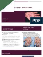 Síndrome de Eritema Multiforme