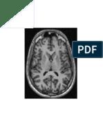 MRI OBED.doc