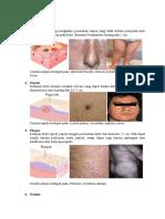 Skin_Efloresence_primer_and_secunder_Efl.docx