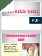 Karies Gigi 2
