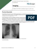 4.Pneumothorax Imaging_ Practice Essentials, Radiography, Computed Tomography
