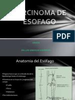 CA de Esofago