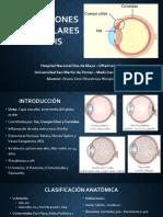 Inflamaciones Intraoculares - Uveítis